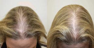 łysienie androgenowe kobiece 1