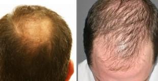 łysienie androgenowe męskie 1.1