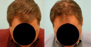 łysienie androgenowe męskie 2