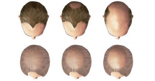 łysienie androgenowe - objawy, przyczyny, leczenie i postępujące wypadanie włosów