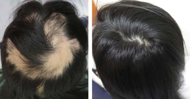 łysienie plackowate przyczyny i leczenie przed po