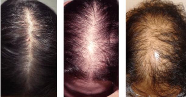 Androgenowe łysienie u kobiet