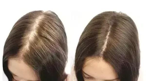 Efekt widoczny na włosach po stosowaniu biotyny