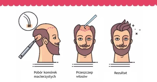 Przeszczep włosów - na czym polega zabieg transplantacji włosów?