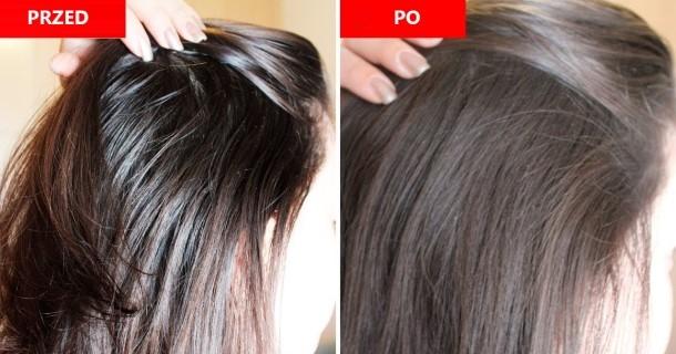 Przetłuszczające się włosy - sposoby na pokonanie problemu