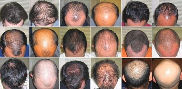 różne rodzaje łysienia na głowie